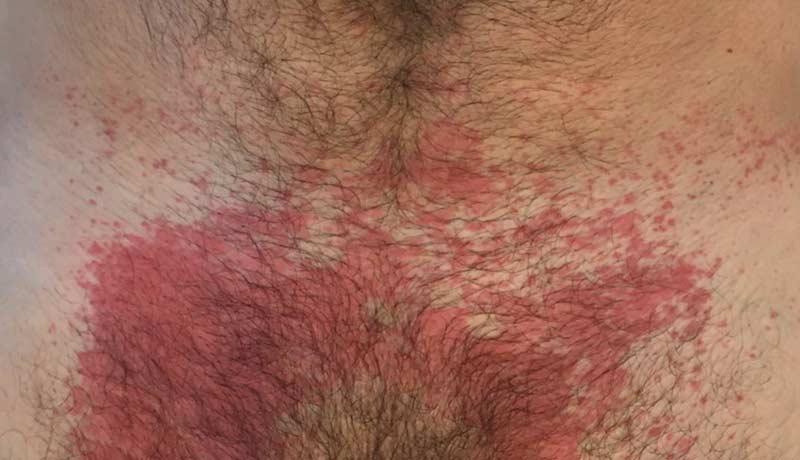 O Que É Dermatite Por Contato-4950